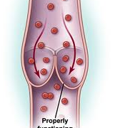 Clinical benefits of Daflon 500 mg in the most severe stages of chronic venous insufficiency.