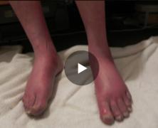 Pre-CCSVI Feet